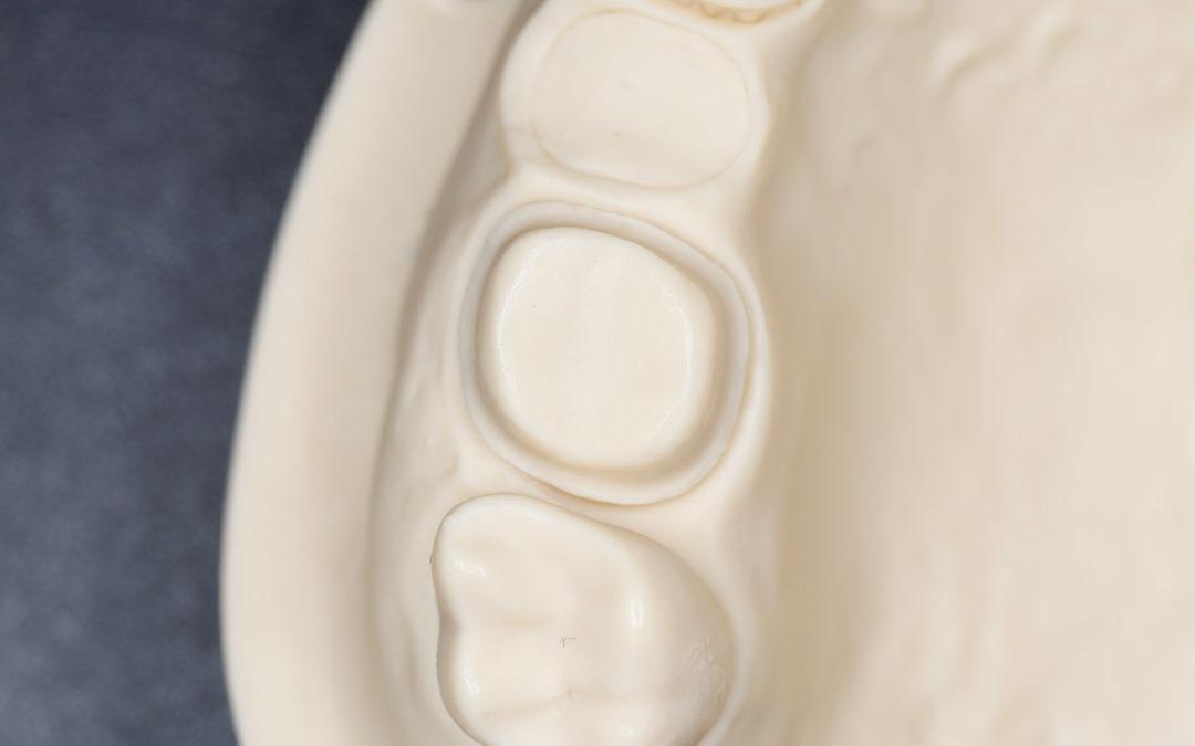 3D nyomtatott fogpótlások